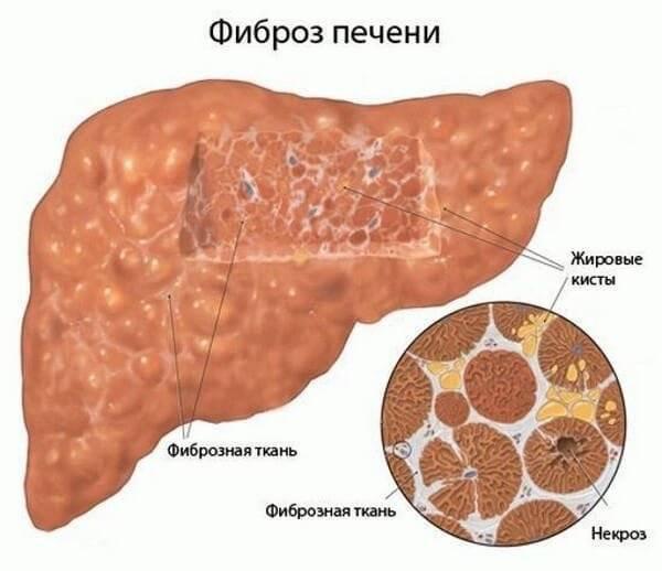 причины цирроза печени у женщин