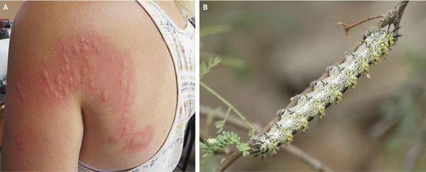 Контактный дерматит — фото, симптомы, причины и лечение