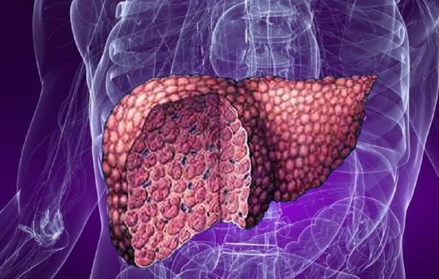 Эффективное лечение гепатоза печени лекарственными препаратами и травами