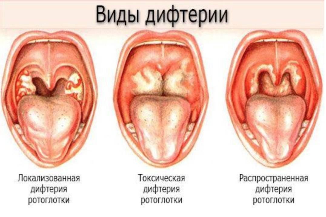 Развитие и симптомы грибковой инфекции в горле
