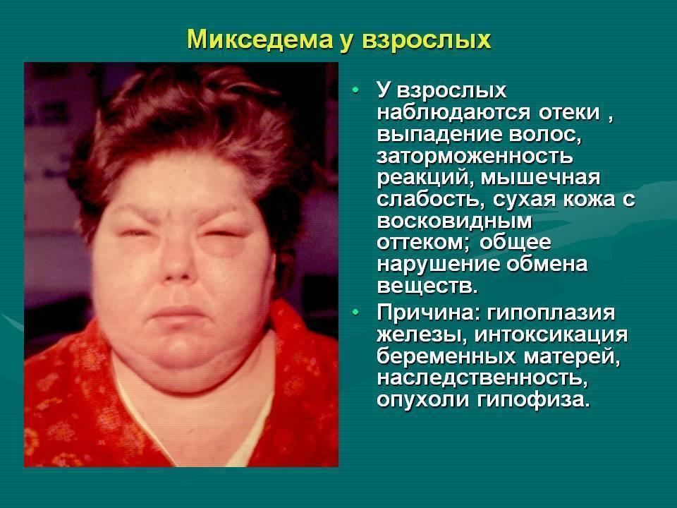 Первые симптомы проблемы с щитовидной железой у женщин