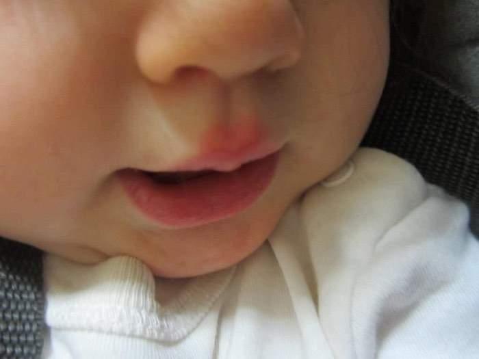герпес на губах у ребенка как лечить