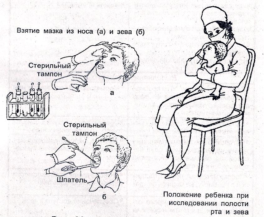 Мазок на флору изо рта
