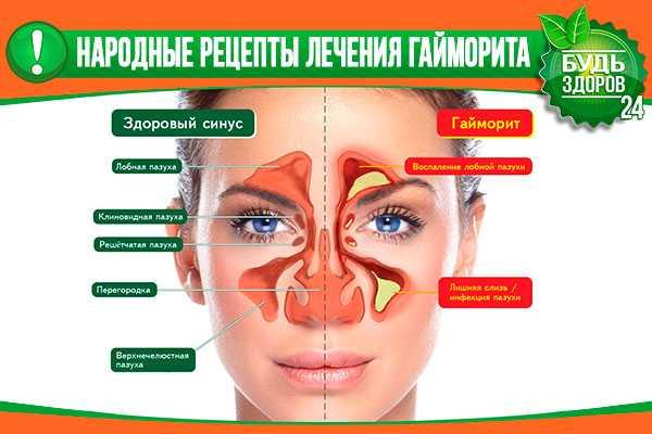 Гайморит симптомы у взрослых без температуры