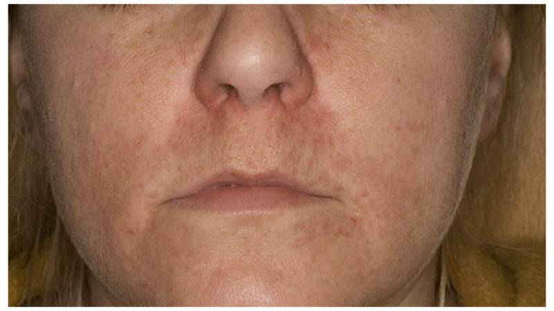 периоральный дерматит на лице