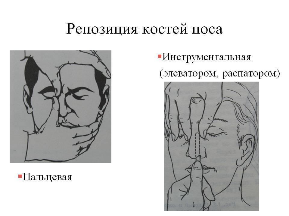 репозиция костей носа что это такое