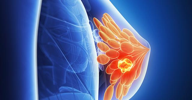 рак молочной железы 3 степени прогноз