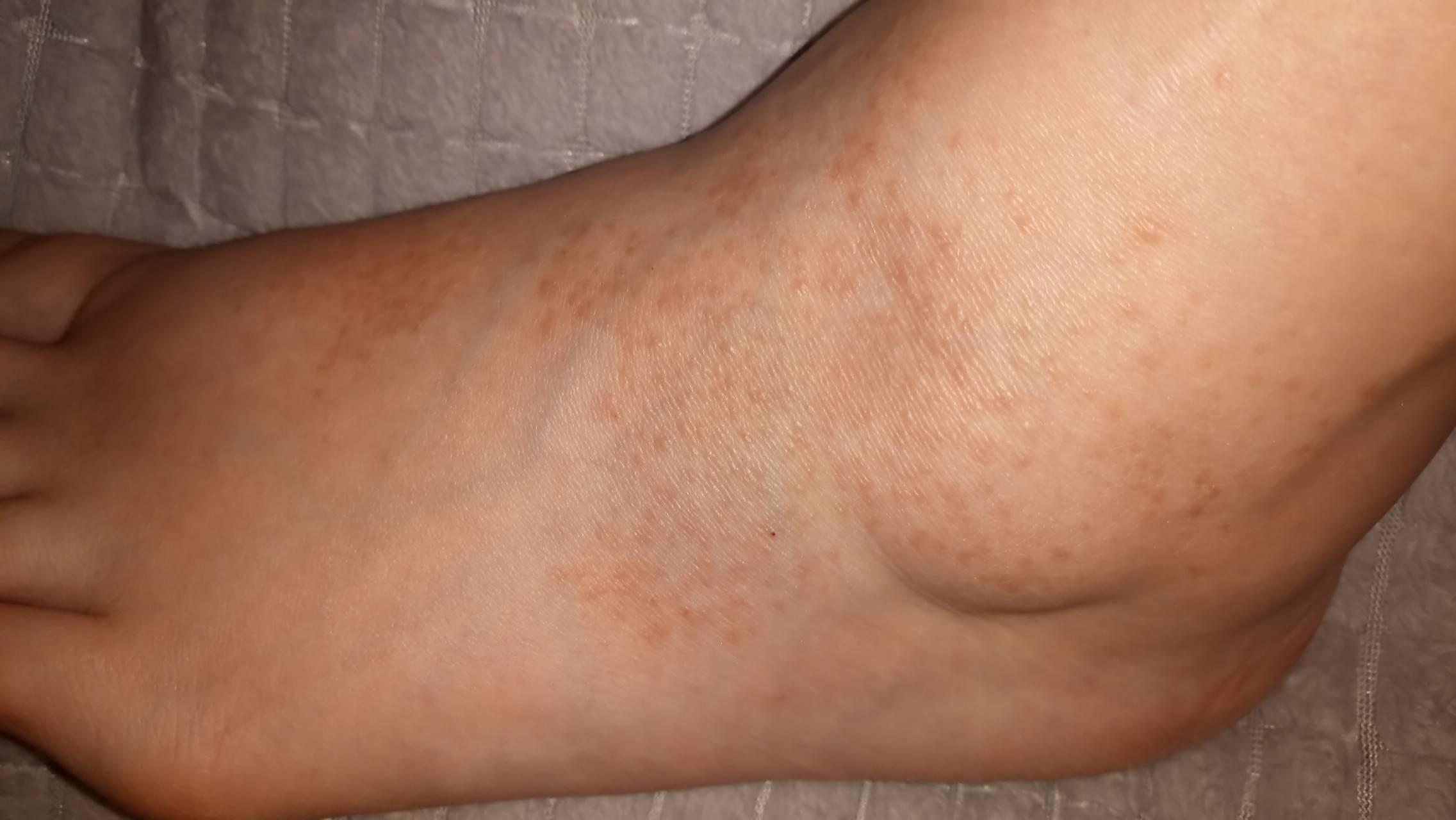 Псориаз на ногах фото: начальная стадия и лечение народными средствами и препаратами