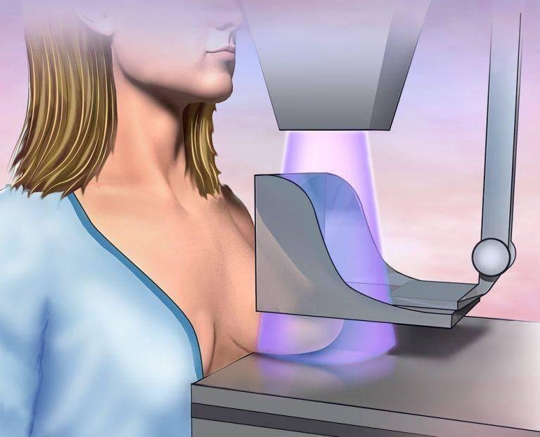 как правильно сделать маммографию