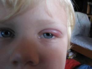 почему у ребенка опухают глаза