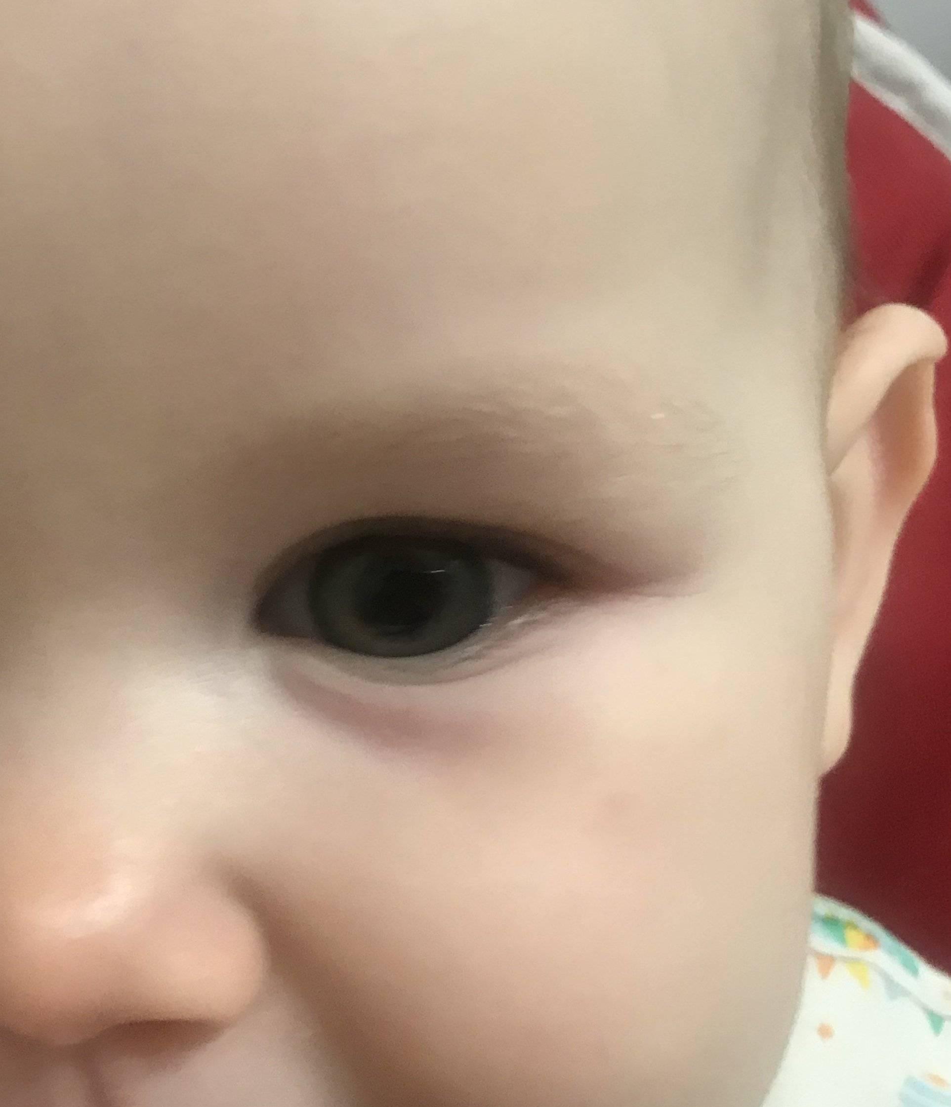 Что делать, если опух глаз у ребенка