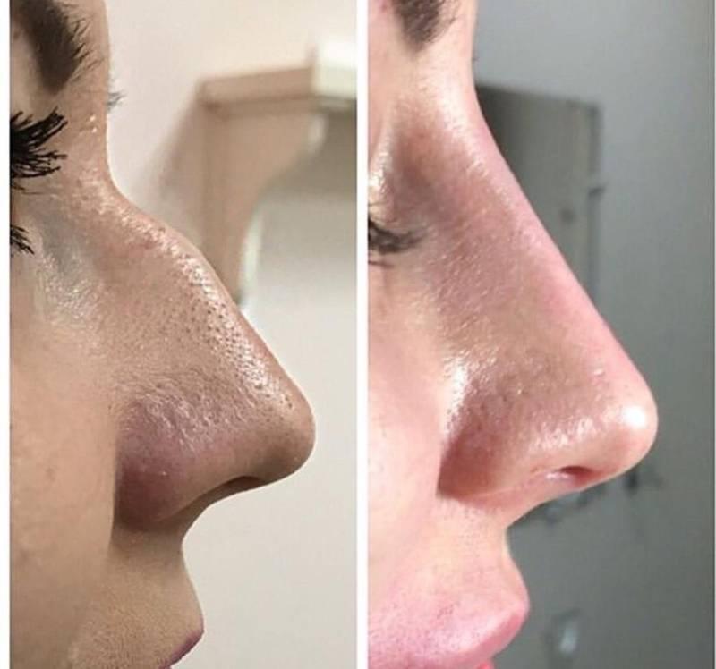 Как уменьшить большой нос в домашних условиях?