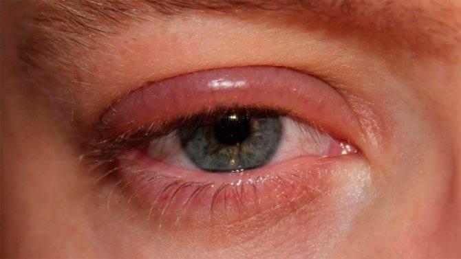 Вопрос специалисту: почему краснеют глаза после душа?