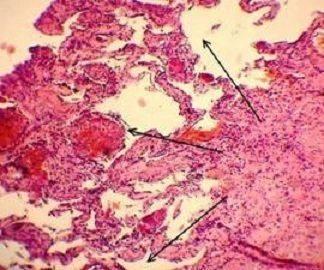 Причины кавернозной гемангиомы печени и методы лечения