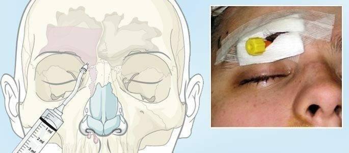 Как делают прокол при гайморите — техника лечения и осложнения