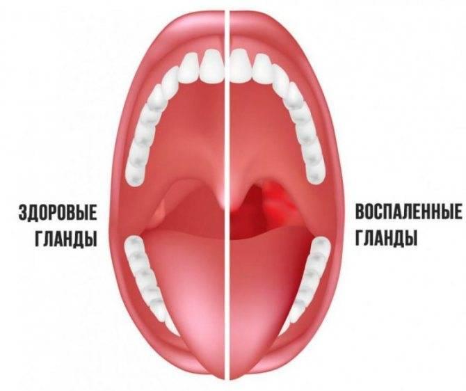 Увеличены миндалины в горле у ребенка: причины и лечение гипертрофии гланд
