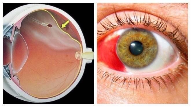 болезни сетчатки глаза человека