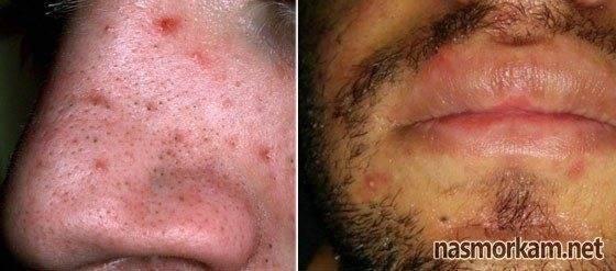 Методы лечения фурункула в носу
