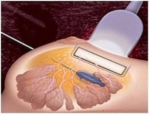пункция молочной железы под контролем узи