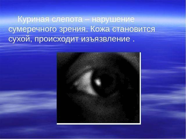 Сумеречное зрение: особенности