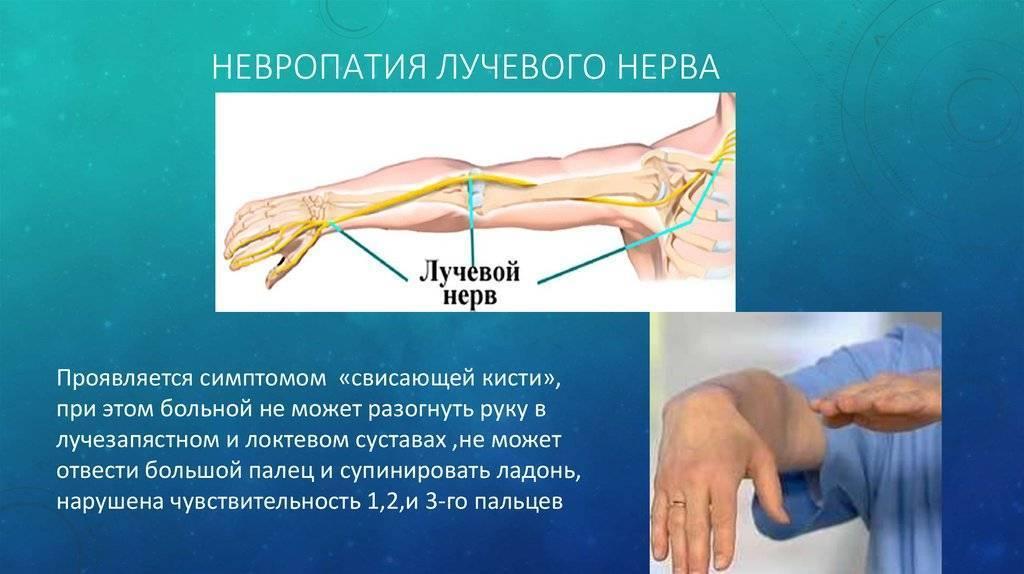 Проявления и терапия неврита лучевого нерва руки