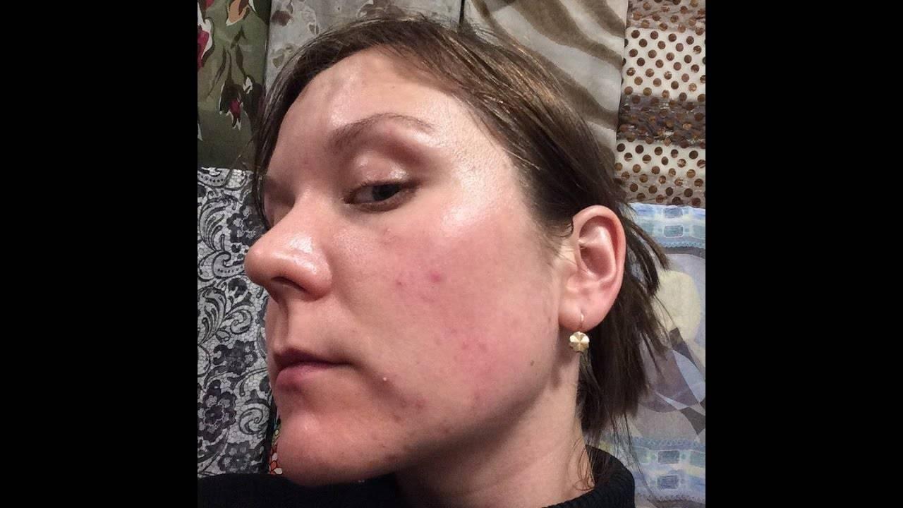 Как лечится подкожный клещ на лице?