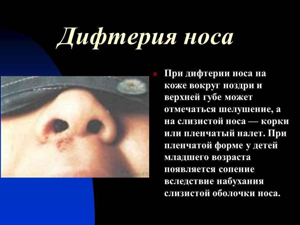 Украине грозит вспышка дифтерии. симптомы, лечение и чем опасна болезнь