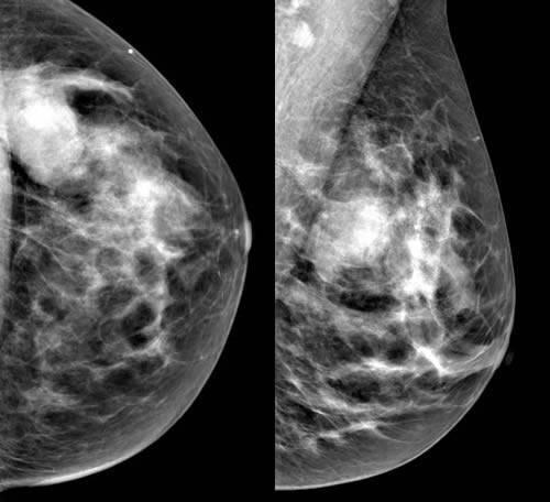 Фиброаденома молочной железы - что это такое, как лечить, отзывы, методы (фото)