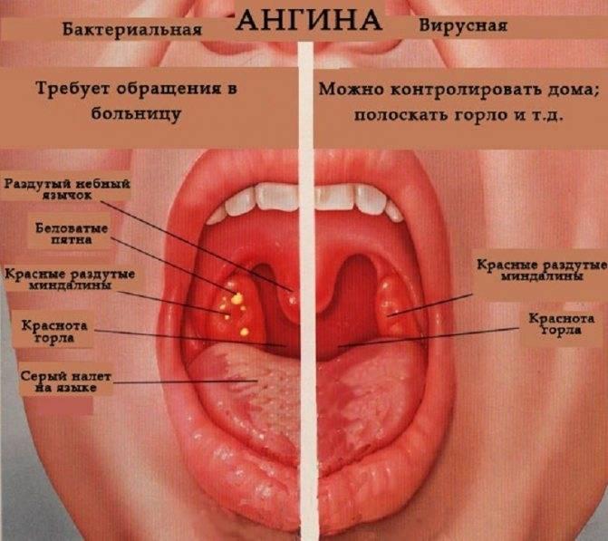 Ангина: симптомы, фото горла, признаки у взрослых, что это такое