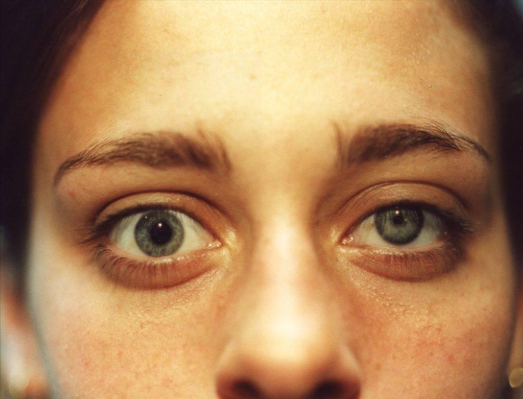 Проблемы со зрением: как сузить зрачки