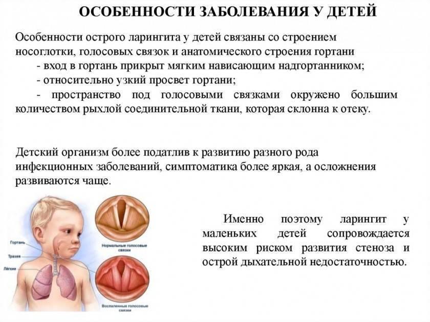 признаки ларингита у ребенка