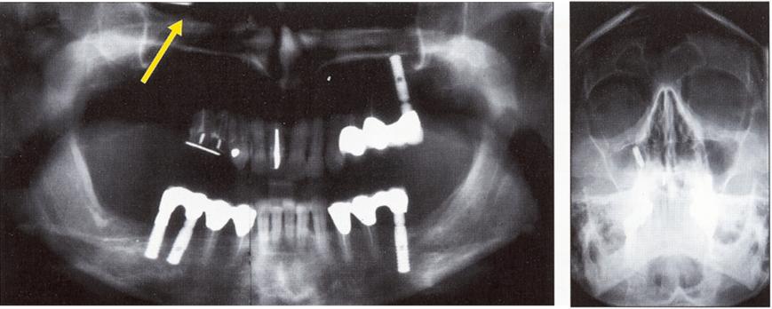 Пломбировочный материал в гайморовой пазухе симптомы