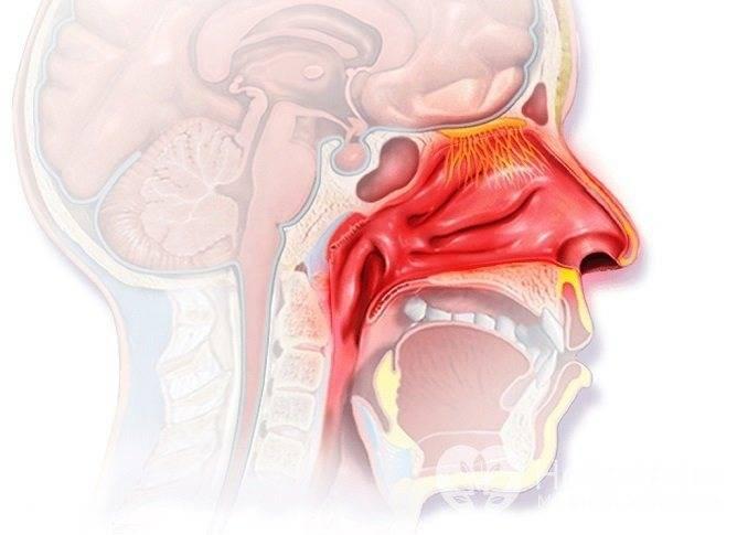 Особенности катарального ринита