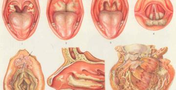 Причины постоянной боли в горле, их диагностика и лечение