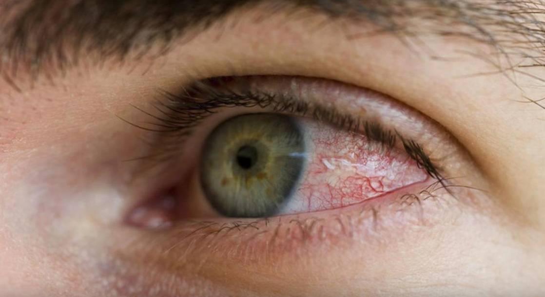 красные глаза утром