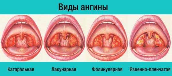 Лакунарная ангина— основные причины, симптомы и тактика лечения