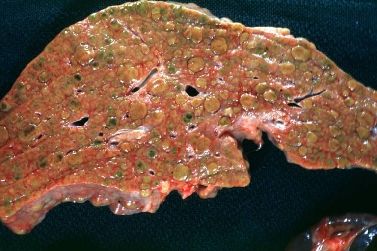Камни в печени: симптомы, что делать и как избавиться?