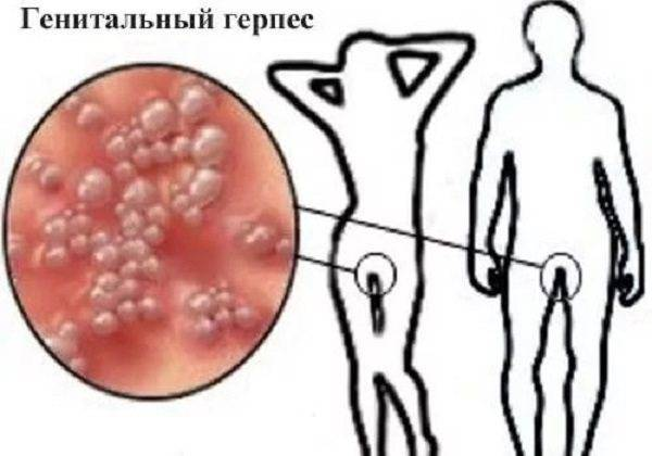 Внутренний герпес: причины, симптомы и лечение