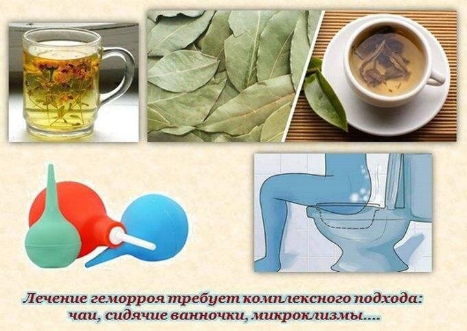 Лекарства и народные средства для лечения геморроя у женщин в домашних условиях