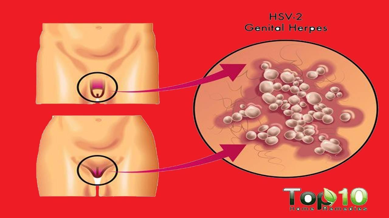 Генитальный герпес у женщин: симптомы, как и чем лечить (мази, препараты)
