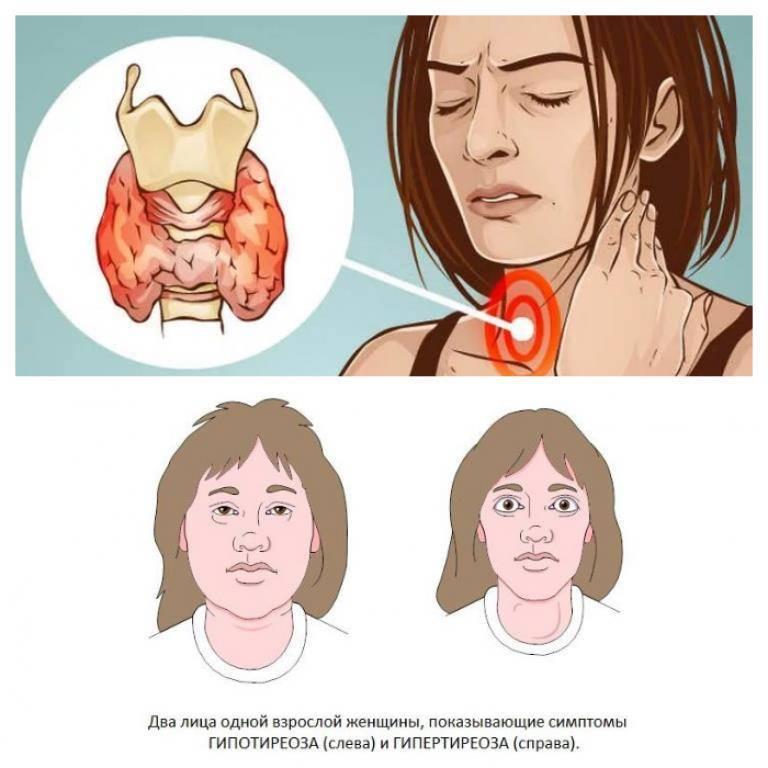 щитовидная железа симптомы и лечение