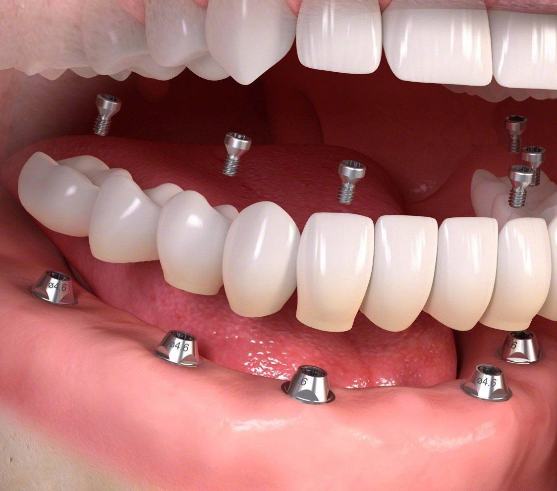 Несъёмные зубные протезы