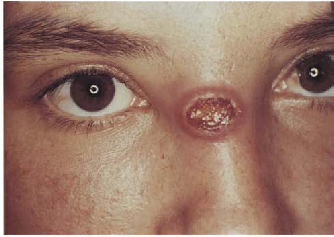 Кожный лейшманиоз – кому опасаться болезни, как ее выявить и лечить?