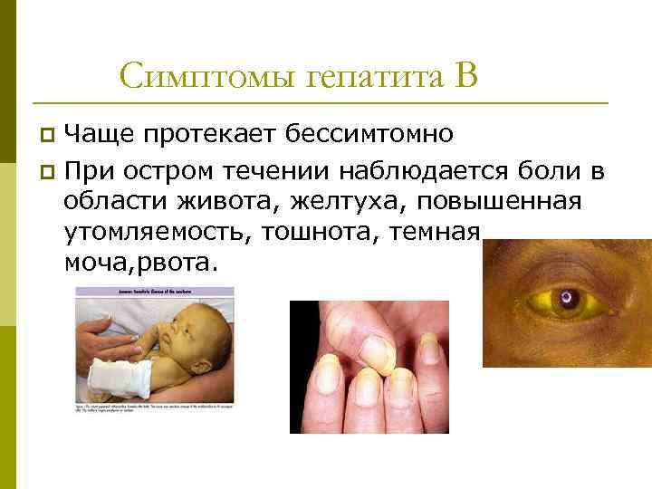 желтуха заразная или нет