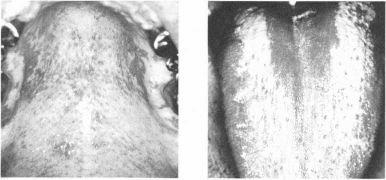 Гнойные и кавернозные пробки в горле: причины образования, методы лечения и профилактики