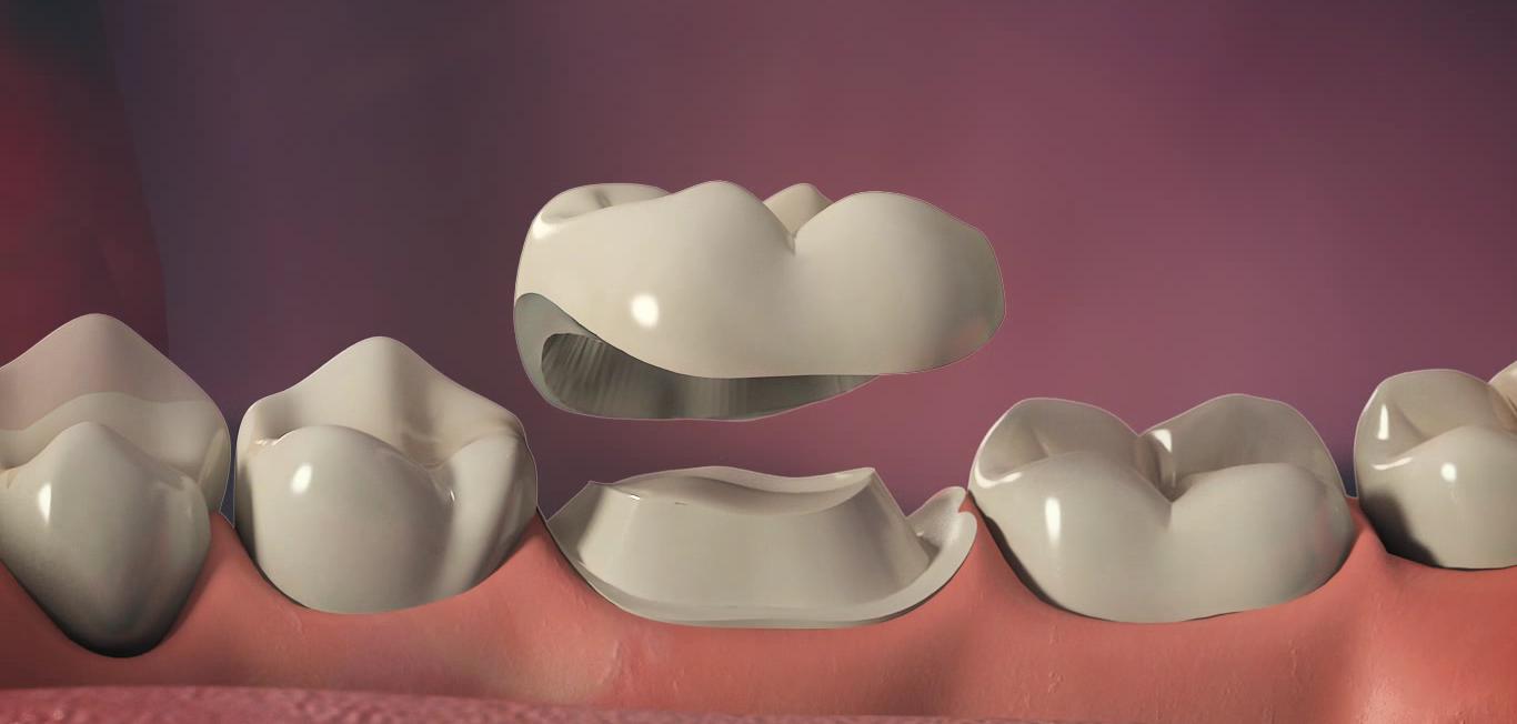 Зубные коронки для протезирования