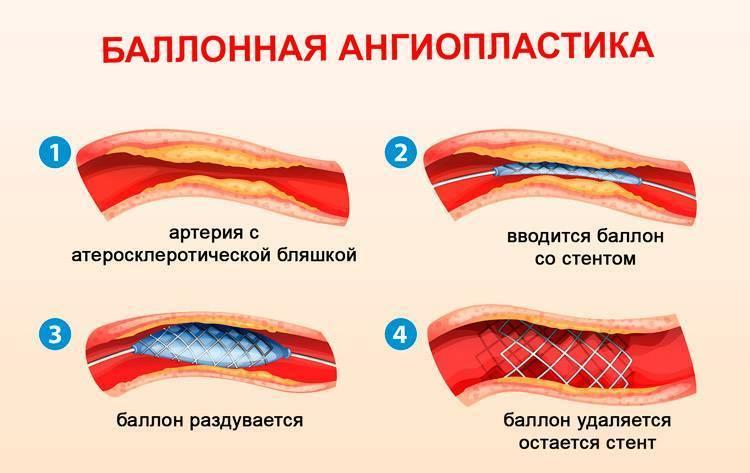 баллонная ангиопластика это