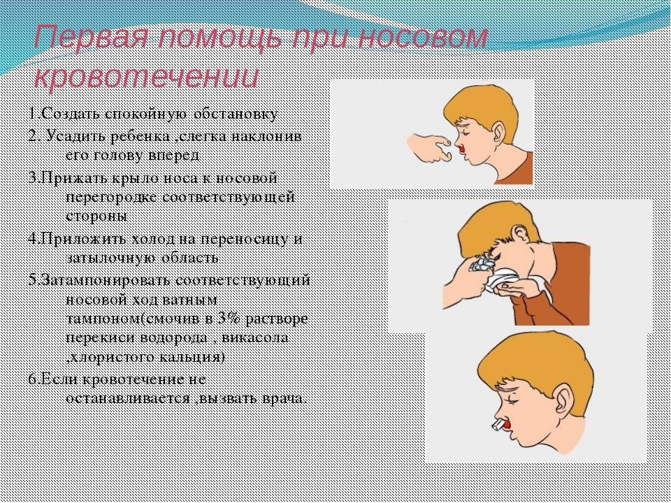 носовое кровотечение причины первая помощь методы лечения