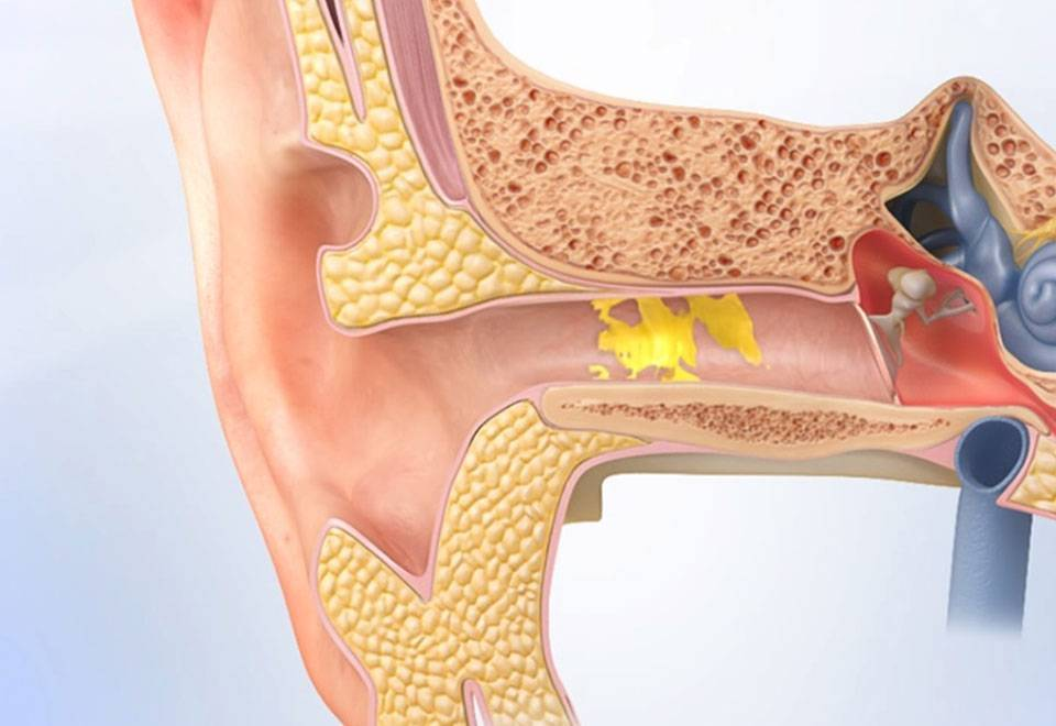 Тубоотит - симптомы, причины, лечение, возможные осложнения