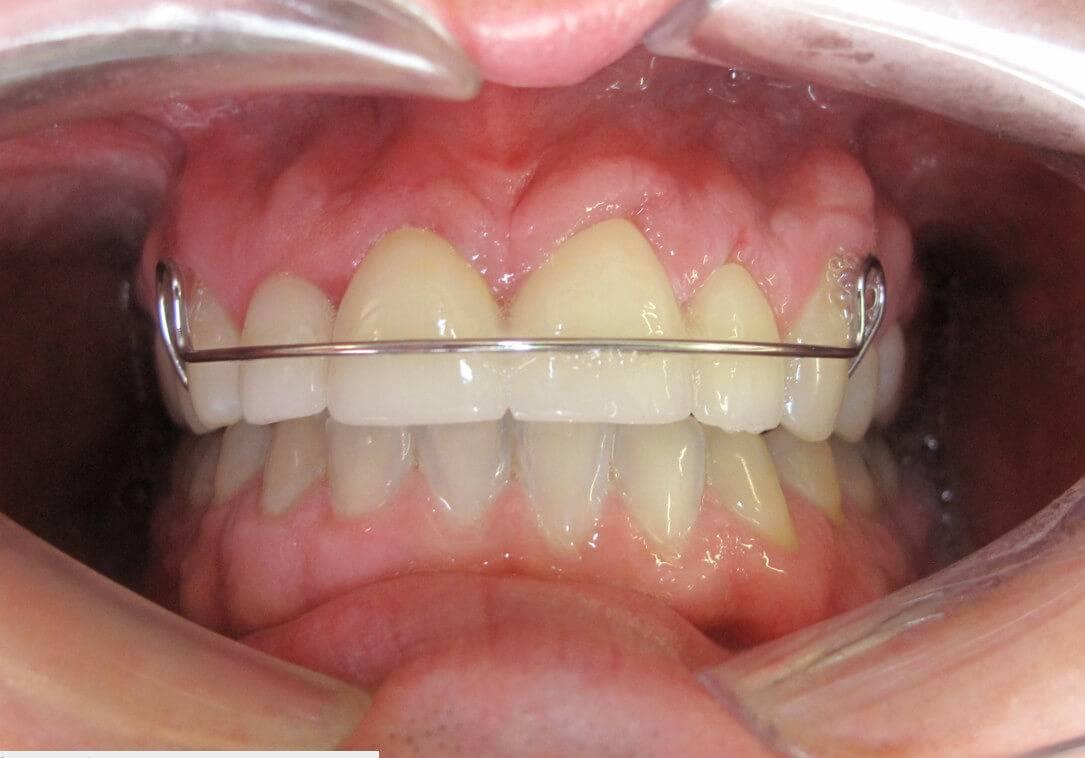 ретейнер на зубах